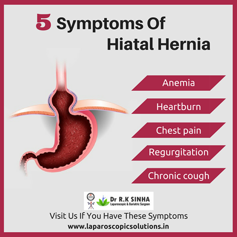hiatal hernia repair, hernia operation mumbai,india, Human Body
