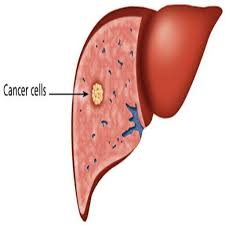 liver-cancer-treatments