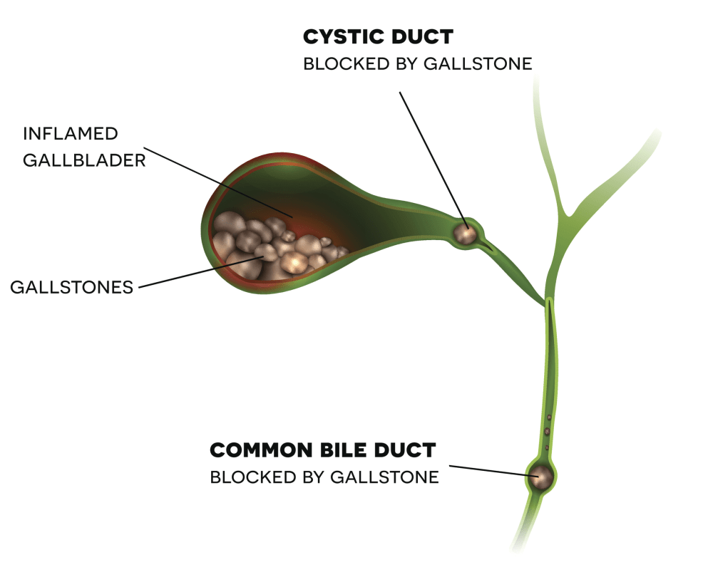 bile-duct-block