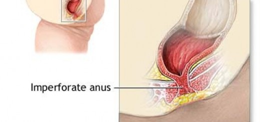 imperforate-anal-surgery