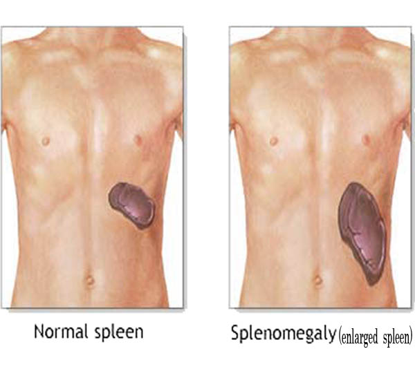 spleen-treatments
